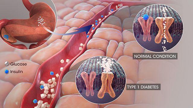 Илюстрация на диабет тип 1